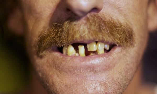 Românii au o igienă dentară precară